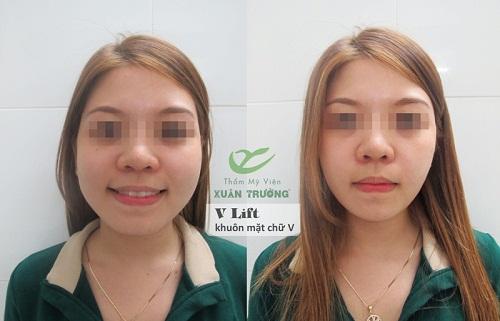 Căng da mặt bằng chỉ không phẫu thuật  với công nghệ ART